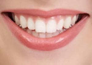 Ini Dia Minuman-Minuman Yang Dapat Menyebabkan Noda Pada Gigi
